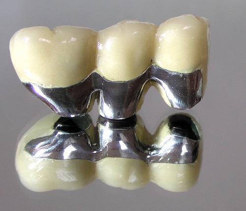 Nedostatak više zuba